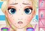 Squeeze Elsa Pimples