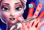 Elsa Hand Surgery