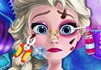 Injured Elsa Frozen