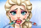 Elsa Tooth Injury