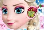 Elsa Ear Treatment